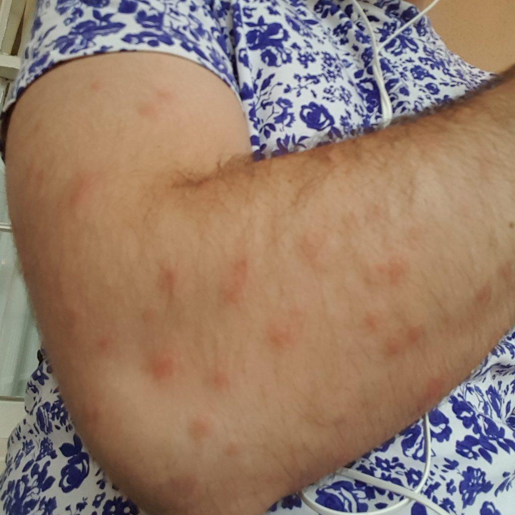 ryans-trip-day-9b-mosquito-bites