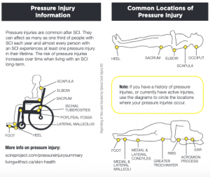 Pressure ulcer wallet card showing common locations of injury