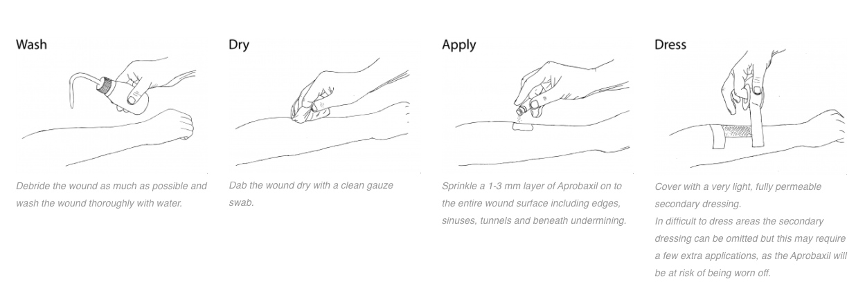 Illustrations showing how to apply Amicapsil to a pressure ulcer