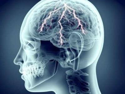 neurostimulation-2